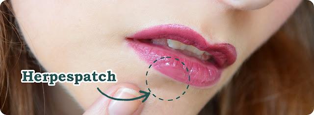 Schminken mit Compeed Herpesbläschenpflaster