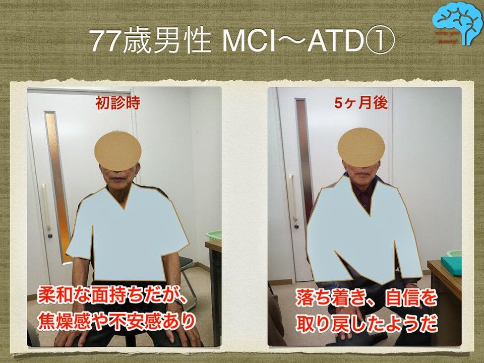 77歳アルツハイマーの男性 表情の変化