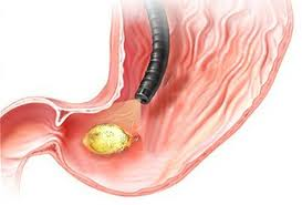 Tratament naturist pentru bolnavii de ulcer gastric