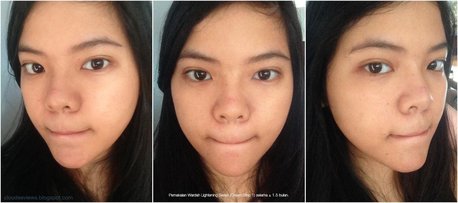 Skin Care Review Wardah Lightening Series My Daily Paket Kosmestik Step 2 Setelah 15 Bulan Memakai No Filter Edit Klik Untuk Memperbesar Gambar