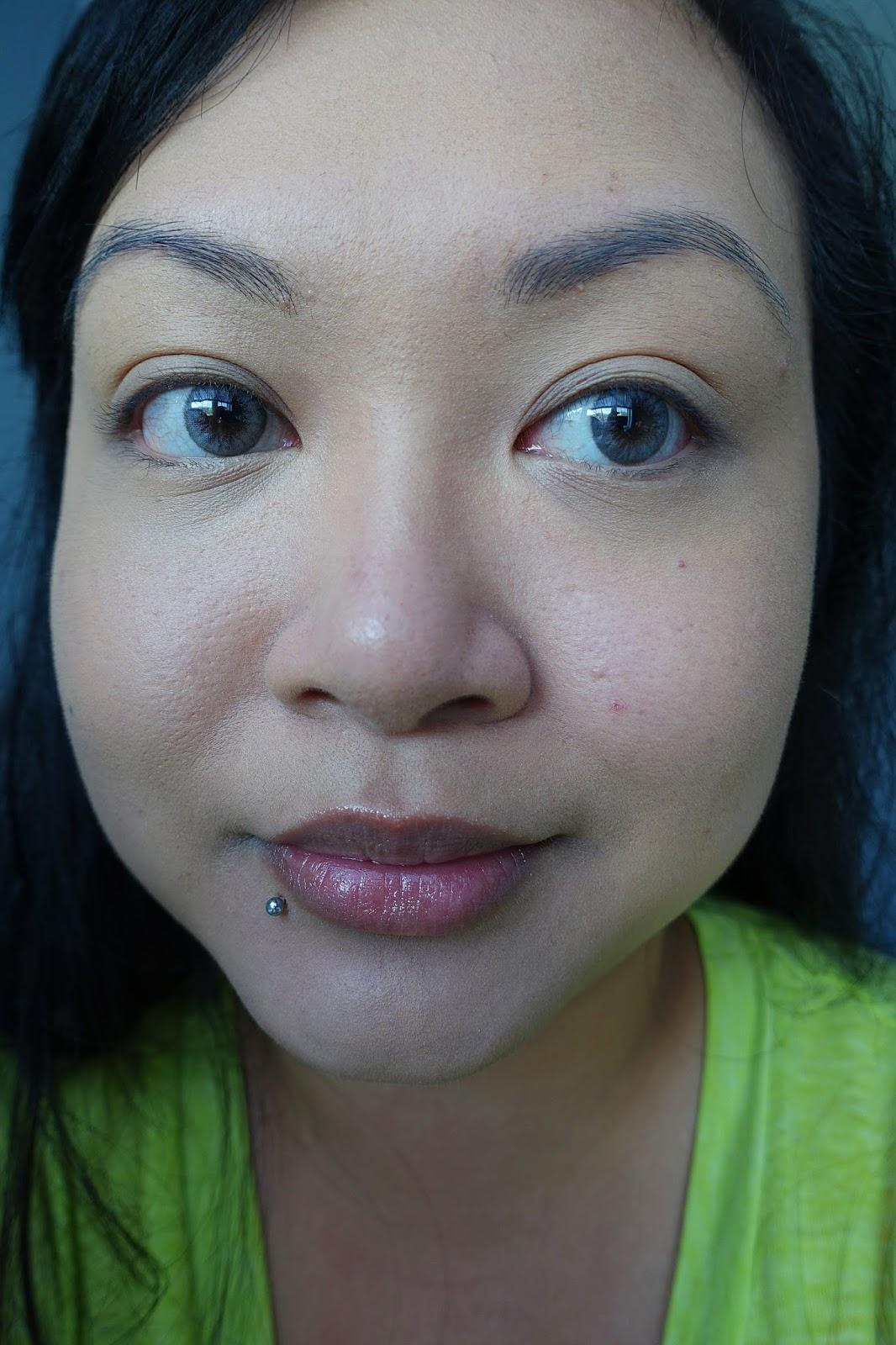 Rosacea cheeks