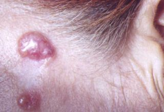 Le carcinome basocellulaire est un cancer de la peau dont l'évolution est très favorable sous traitement. Les autres cancers de la peau sont le carcinome spinocellulaire et le → mélanome malin.  Épidémiologie  Il s'agit du plus fréquent des cancers (près de la moitié des cas) aux États-Unis et son incidence semble s'accroître.  Il touche particulièrement les personnes à la peau claire (blonds ou roux) et est corrélé à l'exposition au soleil et aux rayonnements ultraviolets.