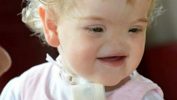 Gadis ini Tetap Bahagia Walau Dirinya Tak ada Hidung