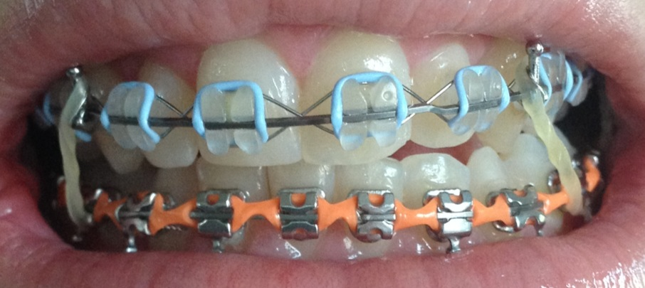 Braces Chick Elastics And Polishing