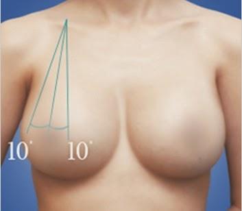 Perbedaan 10 derajat pada operasi payudara artis Korea