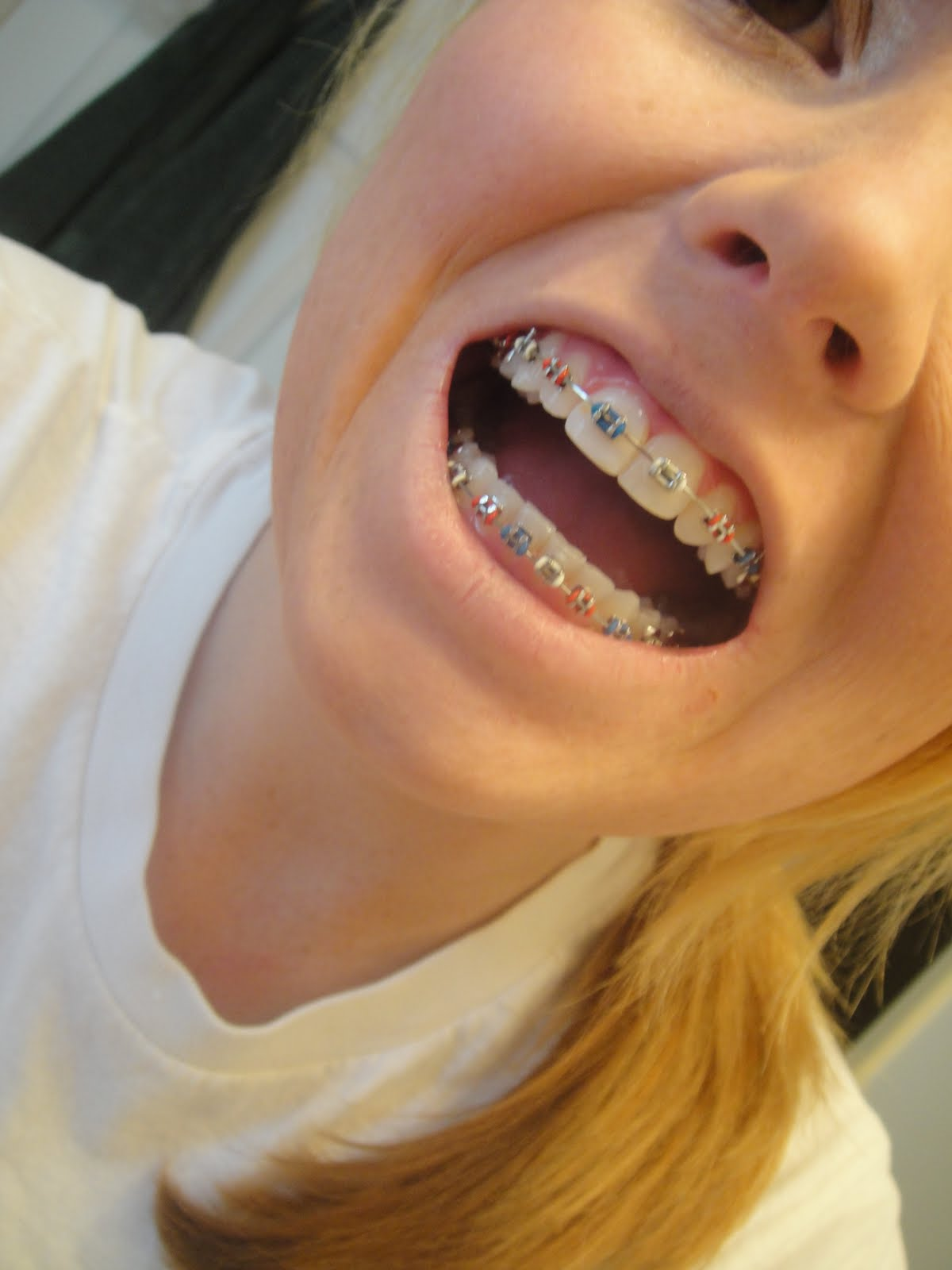 getting braces