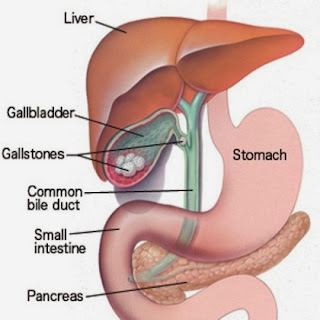 Gallstones: Causes, Symptoms, Diagnosis And Treatment