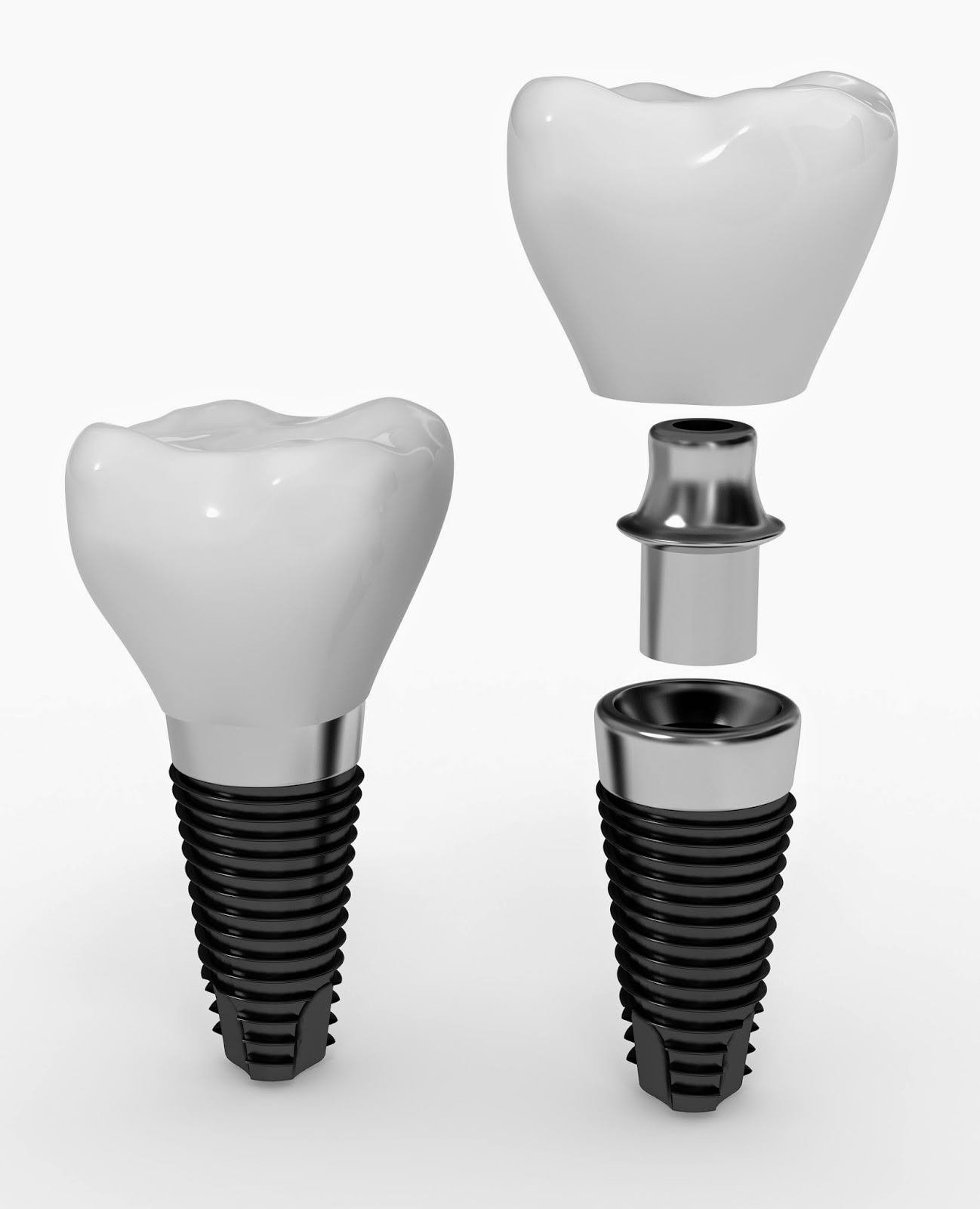 implant, abutment, implant abutment, crown, jamnagar implant, jamnagar dental, jamnagar dentist