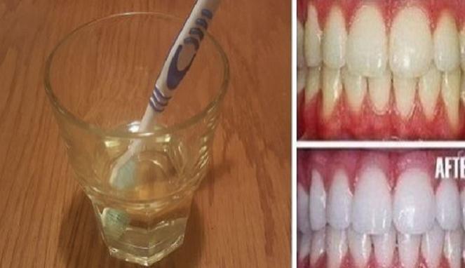 Cara Memutihkan Gigi Dengan Cuka Apel Super Tips Sehat
