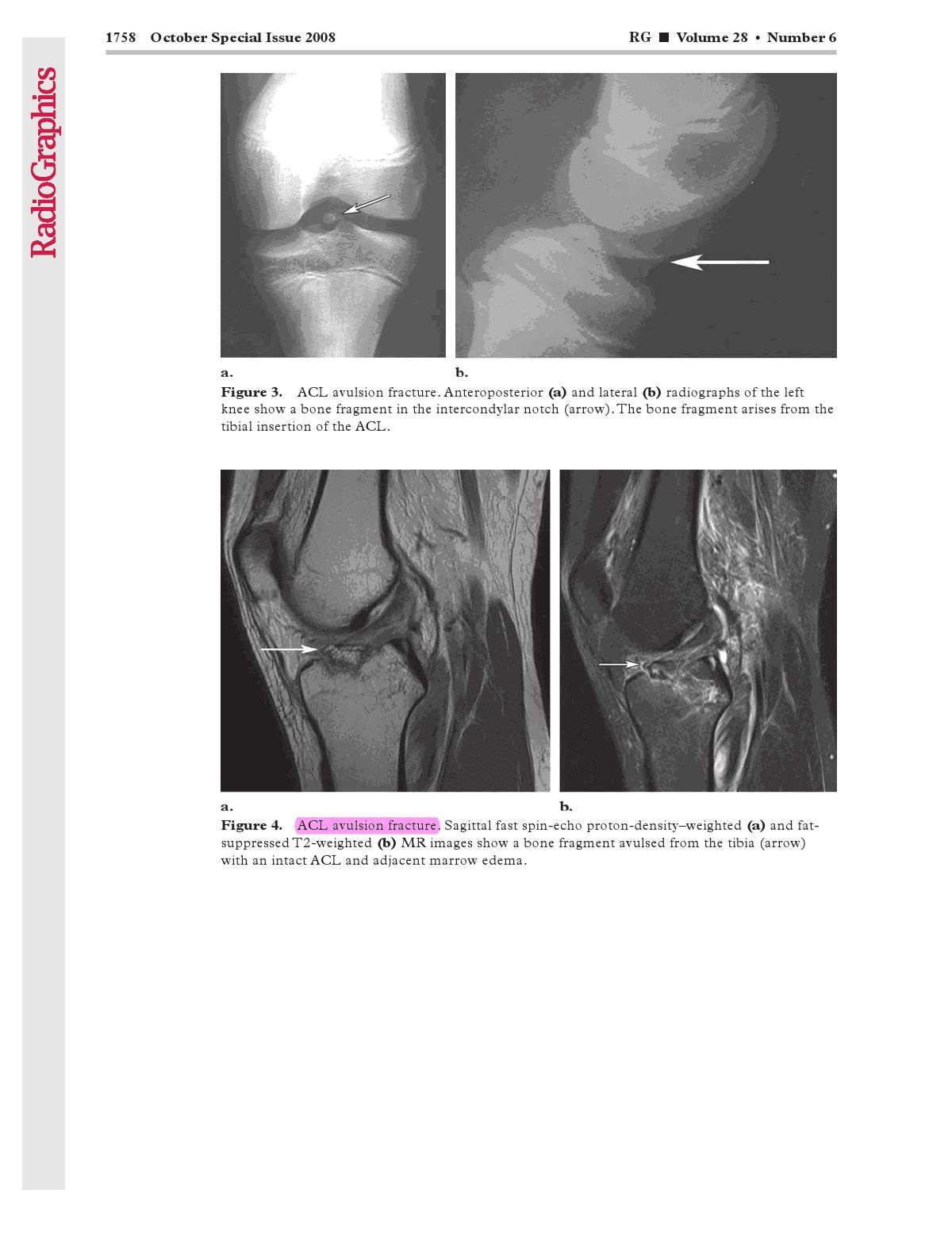 Knee avulsion fracture, RG, ACL, PCL, patellar tendon-4.bp.blogspot.com