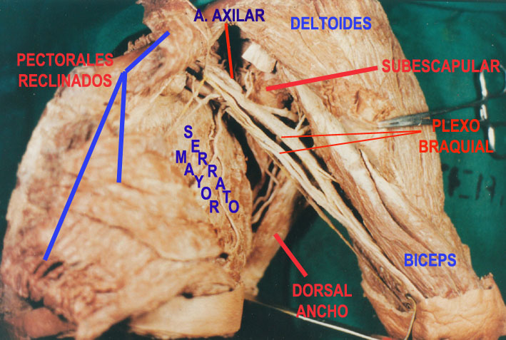 Estudios Anatómicos: AXILA: Límites