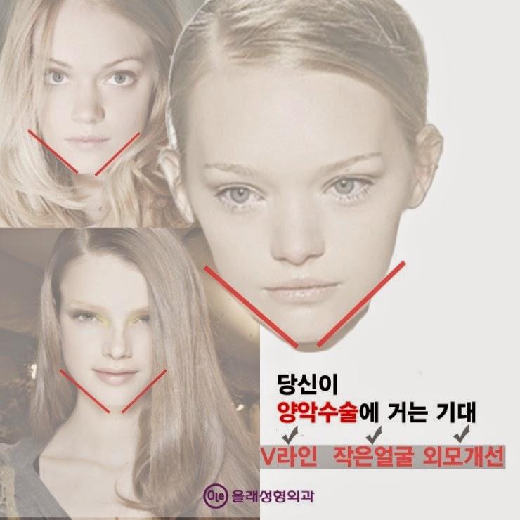 양악수술,양악수술부작용,안면윤곽,윤곽수술,안면윤곽부작용,안면윤곽수술