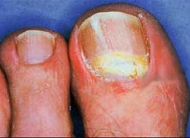 Il trattamento dopo come su una gamba ha rimosso ununghia