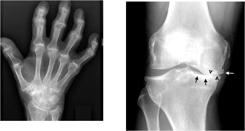 Osteoarthritis ~ Dentistry and Medicine