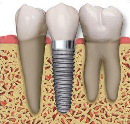 أسباب فشل زراعة الأسنان