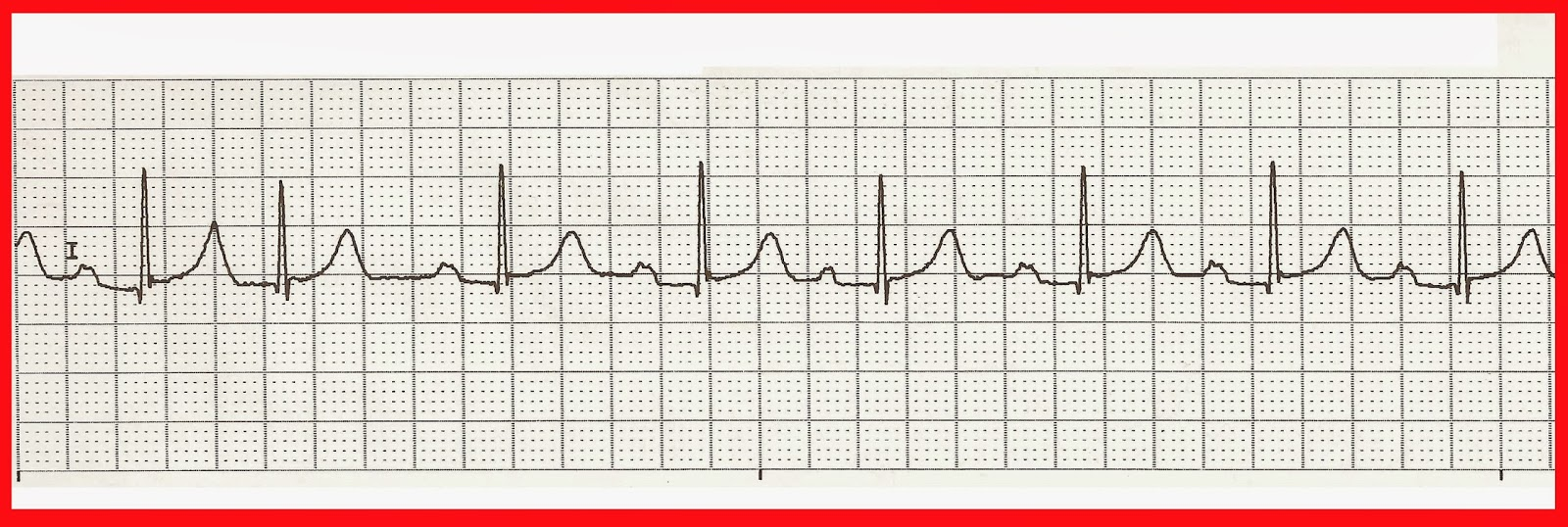ekg with rhythm strip