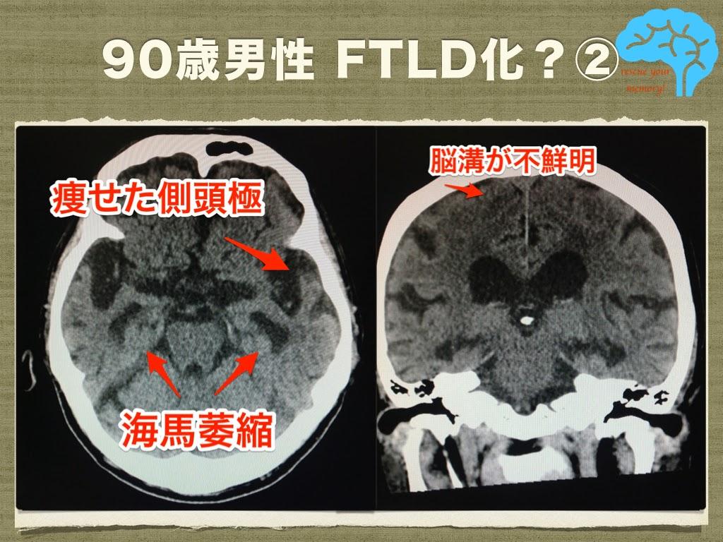 ピック病の頭部CT画像