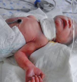 Kejam Dan Tidak Berperikemanusiaan | Bayi Baru Lahir Dibuang Tempat Pembuangan Sampah Dengan Kesan Kelar Dileher