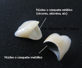corona dental estetica