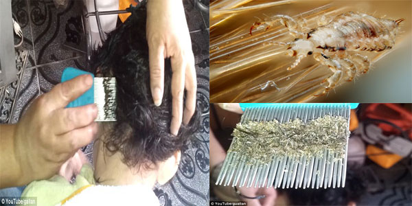 WATCH: Mother Combing Millions of Lice out of Her Daughter's Hair