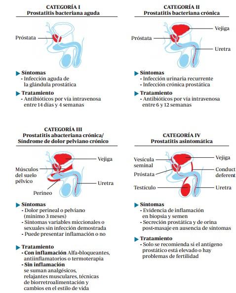 diagnose acute prostatitis behandeling.jpg