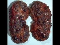 What is Polycystic Kideny Disease
