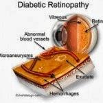 Symptoms & Treatment Diabetic Retinopathy