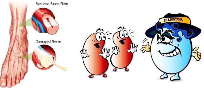 Pengobatan Tradisional Diabetes Melitus Kering Dan Basah