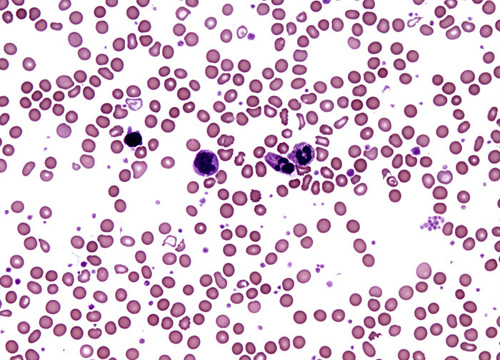 Cancer, A Lab Tech 's Perspective: Blood Disorder ... B12 Deficiency Smear