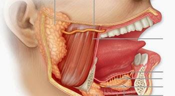 pengobatan herbal infeksi kelenjar ludah