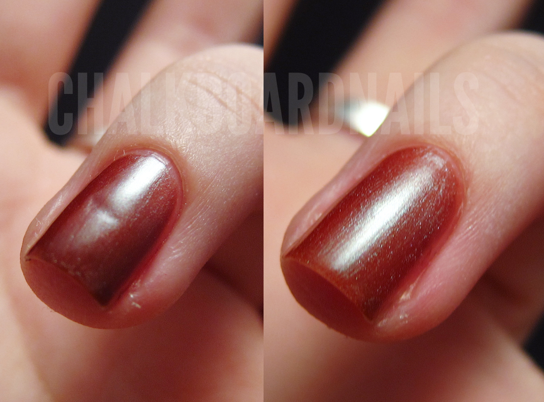 how to fix dented nail beds