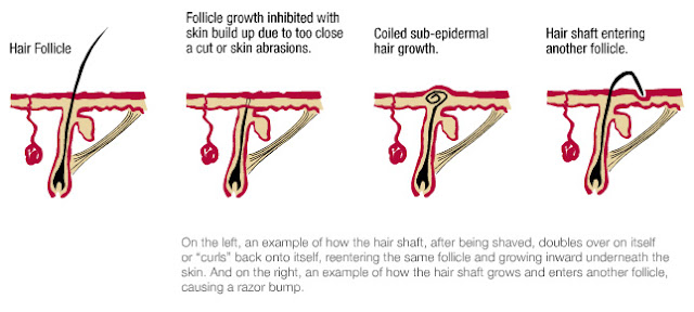 When a hair penetrates your skin,your skin reacts as it would to a