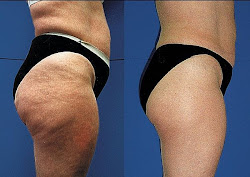 Getting rid of hip cellulite