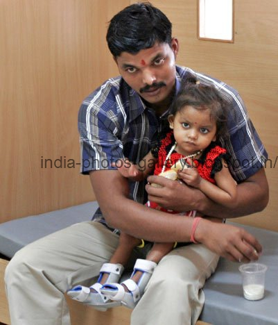 what are the defects of indian Birth defects (also called congenital anomalies) are problems present at birth there are many different types of birth defects, and they can range from mild to severe.