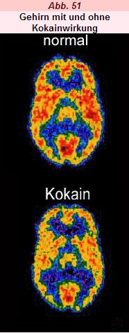 Verhalten und Neurobiologie: Synapse: Drogenwirkung und Sucht ...