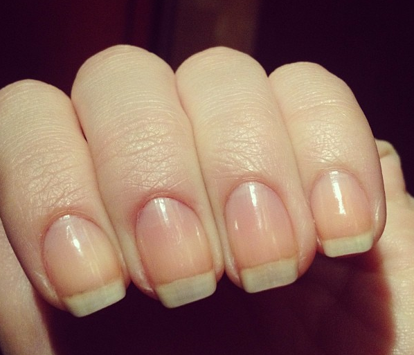 How I Stopped Biting My Nails: A Guide to Healthy Nails | Colors ...