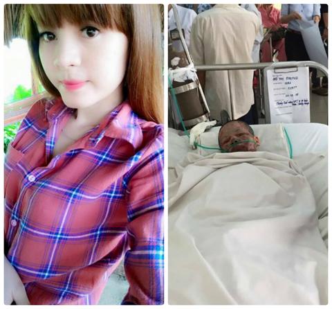 Xót thương cô gái Gia Lai bị hủy hoại toàn bộ cơ thể do người yêu tạt xăng đốt