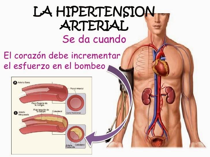 La hipertensión castiga a los hispanos en EEUU/Aparte de la diabetes, el cáncer y los problemas cardiovasculares, la hipertensión es una de las enfermedades que más afectan la salud de los hispanos que residen en Estados Unidos.