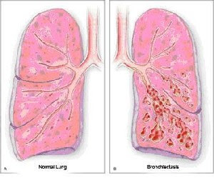 bronchiectasis pneumonia, what is bronchiectasis, bronchiectasis copd, bronchiectasis symptoms, bronchiectasis treatment, bronchiectasis definition, cystic bronchiectasis