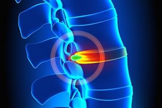 10 sintomas (prováveis) da Hérnia de Disco