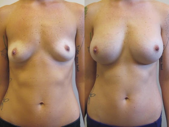 Natural Breast Enhancement using Foods, Exercises and Breast Massage