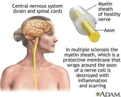 the causes manifestations and effects of inflammation to the brain and central nervous system Inflammatory brain disease, also referred to as inflammatory disease of the central nervous system (cns), is a condition where the brain and/or spinal cord become inflamed inflammation in the brain causes irritation and swelling of brain tissue or blood vessels brain inflammation can occur for a variety of reasons.