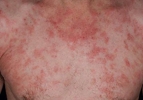 El test en atopichesky la dermatitis