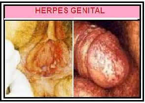 penyakit herpes kelamin