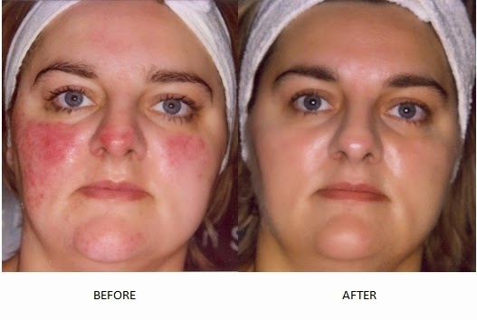 Rosacea and the 2 Minute Miracle Gel