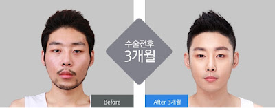 sebelum dan sesudah operasi plastik untuk pria di wonjin-2
