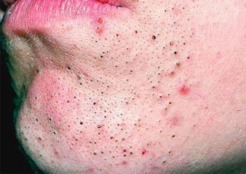 Как лечить подкожный прыщ на носу
