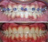 Gigi terputar (3)