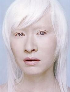 Gadis Albino Asia yang Seksi dan Orang-Orang Albino Asia yang Lain