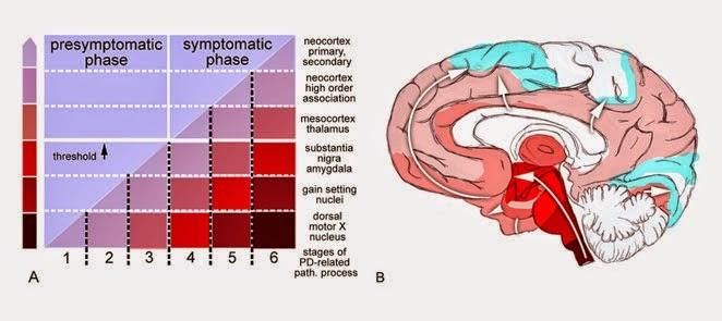 Es el Parkinson una enfermedad priónica? (y 2) | El camino de Caplan